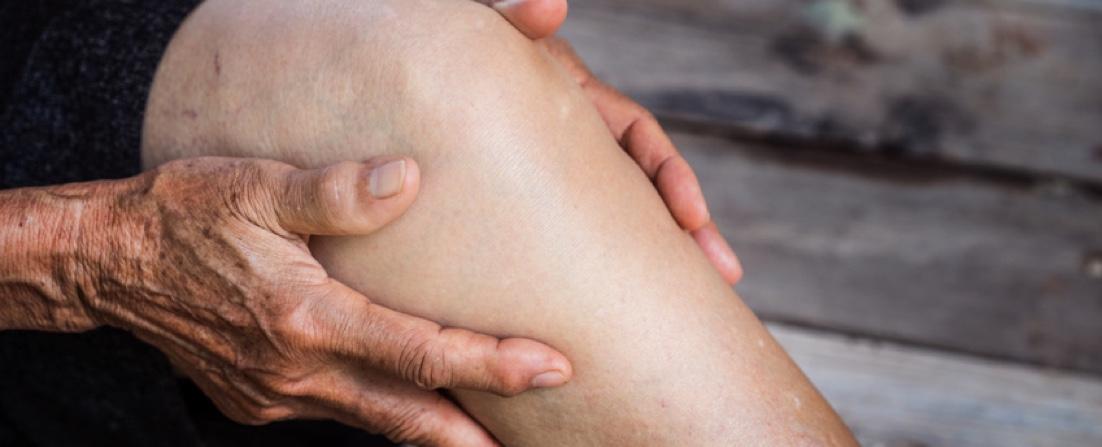 Arthrose mit Hyaluronsäure behandeln.